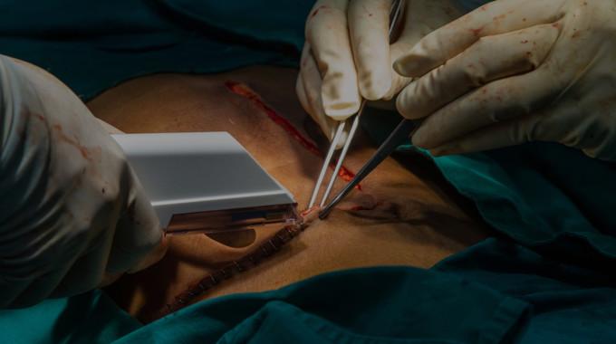 Hernia Surgery Transportation | Hernia Surgery Dubai